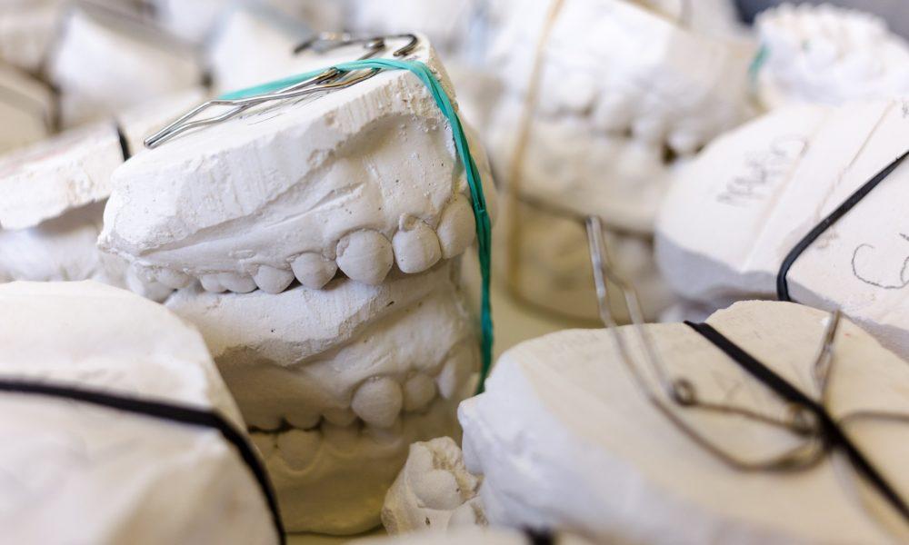 Złe postępowanie żywienia się to większe braki w zębach a także ich brak